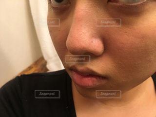 肌荒れの写真・画像素材[1630772]