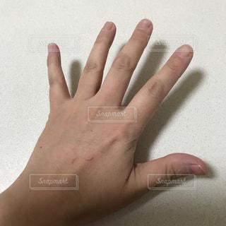 左手引っ掻き傷引きの画像の写真・画像素材[1871766]