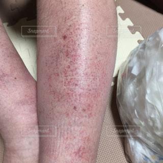 湿疹。の写真・画像素材[817181]