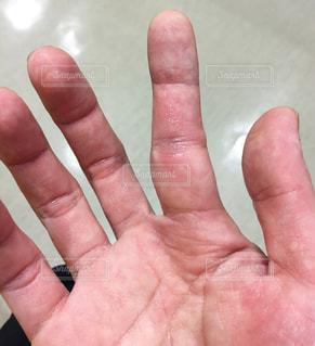 バスケットボールにて剥離骨折&脱臼した際の写真です!全治1ヶ月以上かかります‥。の写真・画像素材[829963]