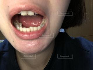 口を開いている人の写真・画像素材[1760434]