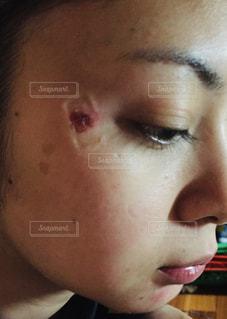 シミ治療の写真・画像素材[1760614]