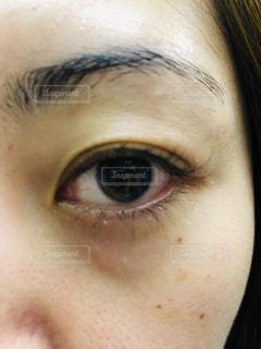 目のクマがひどい女性の写真・画像素材[1765722]