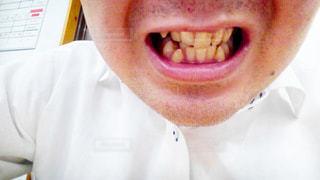 歯並びの写メの写真・画像素材[1818666]