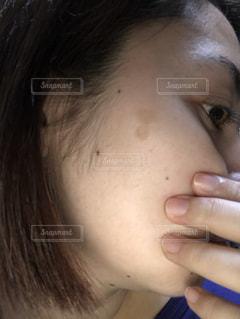 シミのある女性の写真・画像素材[2020021]