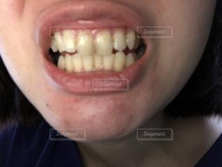 歯の写真・画像素材[2020032]