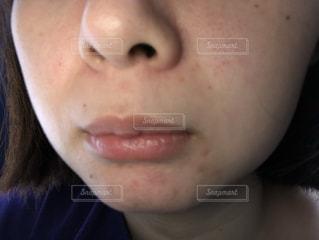 肌荒れの写真・画像素材[2020037]