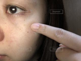 目の周りにシミの写真・画像素材[2020094]