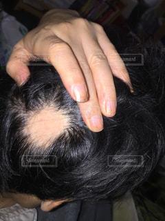 円形脱毛症 - No.865817