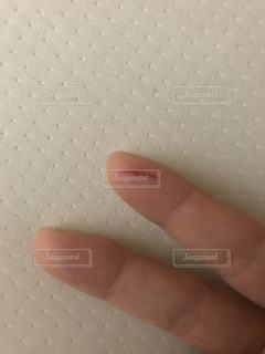 切り傷。の写真・画像素材[1062744]