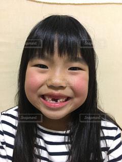 前歯がなくて食べにくいの写真・画像素材[936994]