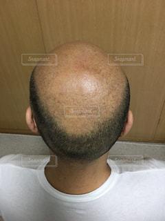 禿げ頭 上からの写真・画像素材[2147265]