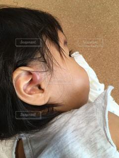 耳瘻孔腫れの写真・画像素材[1010685]