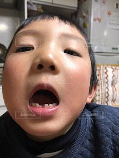 初めて歯が抜けました。の写真・画像素材[1022908]