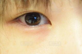 目の写真・画像素材[1734986]