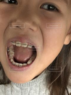 歯の矯正の写真・画像素材[1705935]