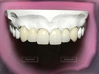 審美歯科の写真・画像素材[1063944]