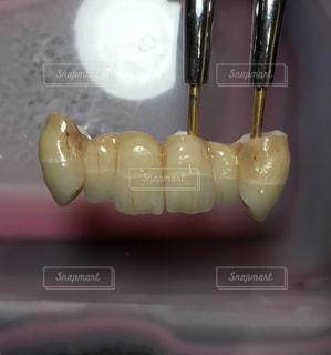 高齢者の歯の写真・画像素材[1972557]