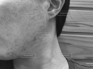 にきびに悩む女性の横顔のモノクロ写真の写真・画像素材[1080237]