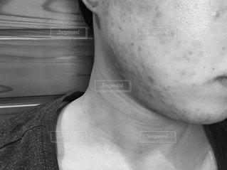 にきび肌の女性の横顔のモノクロ写真の写真・画像素材[1080238]