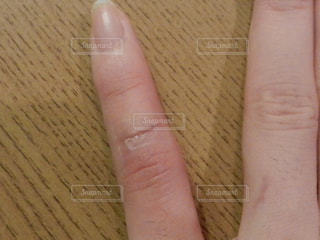 塞がってきた手術痕の写真・画像素材[1105044]
