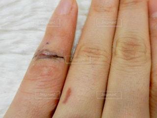 手術後の手のアップの写真・画像素材[1105048]