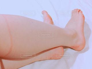 両足靴擦れの写真・画像素材[1501403]