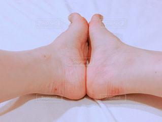 両足靴擦れの写真・画像素材[1501404]