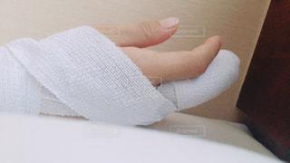 骨折の写真・画像素材[1181007]