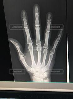 骨折したレントゲン写真の写真・画像素材[1181047]