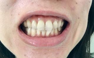 歯の写真・画像素材[2350538]