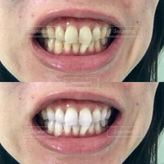 歯の写真・画像素材[2350552]