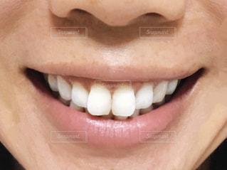 歯の写真・画像素材[2375725]