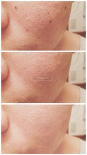 肌の写真・画像素材[2380004]