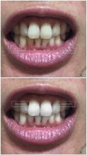 歯の写真・画像素材[2416165]