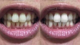 歯の写真・画像素材[2416167]