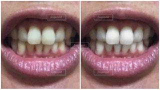 歯の写真・画像素材[2416168]
