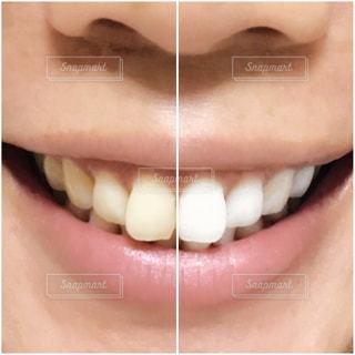 歯の写真・画像素材[2459467]
