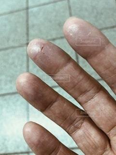 乾燥してひび割れた指先の写真・画像素材[3856098]