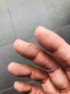 乾燥で割れた指先の写真・画像素材[3856112]