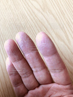 乾燥でカサカサの指先の写真・画像素材[3856111]