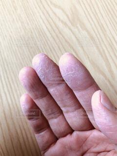 乾燥でひどくなる手荒れの写真・画像素材[3856113]