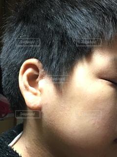 肌荒れの写真・画像素材[1182153]
