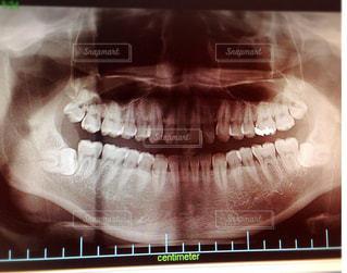 親知らず  虫歯  歯医者の写真・画像素材[1117665]