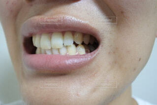 歯並びアップの写真・画像素材[3701383]