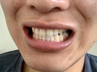 歯のアップの写真・画像素材[4293084]