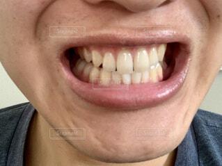 歯のアップの写真・画像素材[4293089]