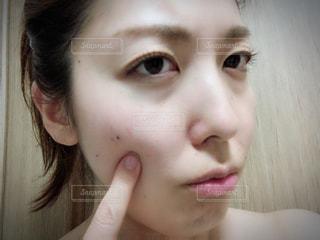 肌トラブルの写真・画像素材[1219956]