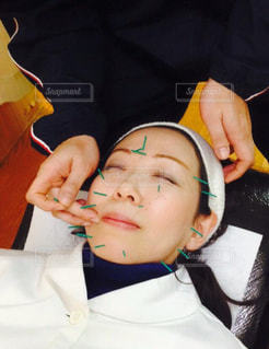 美容鍼の写真・画像素材[1289479]