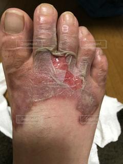 足の甲の火傷、水膨れ破裂の写真・画像素材[1157499]